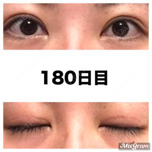 180 days after image
