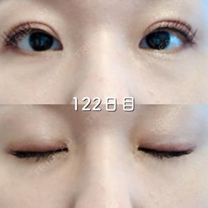 122 days after image